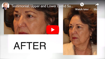 Thumbnail of a Upper and Lower Eyelid Surgery with Laser Skin Resurfacing video - click to see