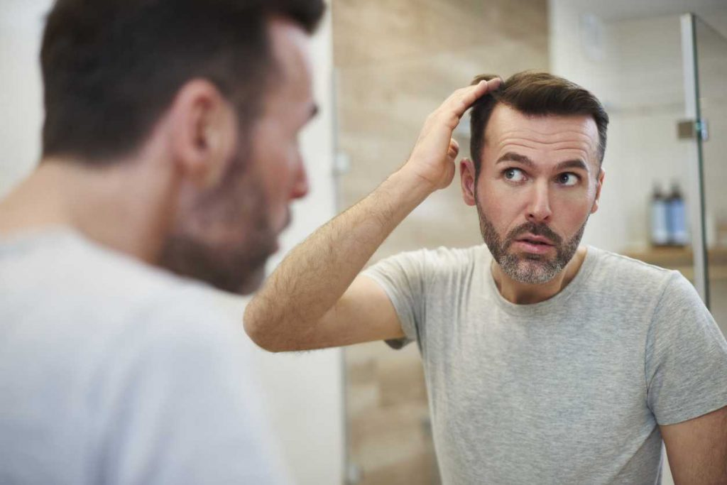 Does hair loss make you look old?