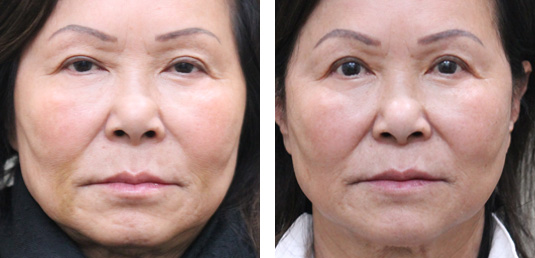 Asian Blepharoplasty 9