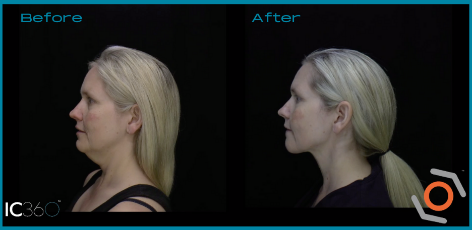 neck rejuvenation before and after picture female patient left side view