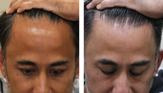 Before and After Picture  44 Year Old Male, 1 Year After 2020 Grafts to Hairline