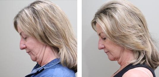 Before and After Picture  61 Year Old Female - FaceTite to the Neck and Jowls with MyEllevate Neck Suspension