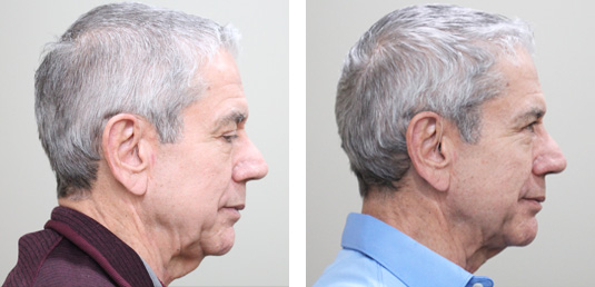 Before and After Picture  74 Year Old Male - FaceTite and Morpheus8 to the Neck and Jowls