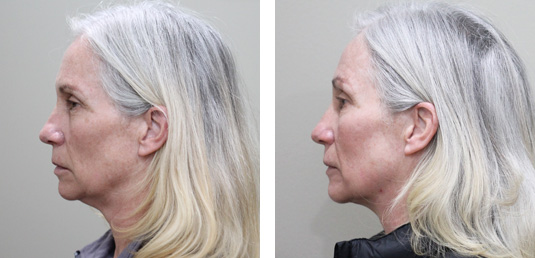 Before and After Picture  61 Year Old Female - FaceTite and Morpheus8 to Neck and Jowls