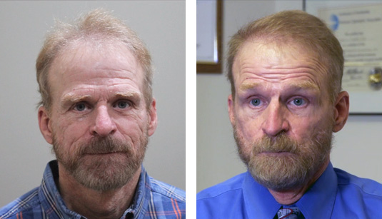 Before and After Picture  62 Year Old Male, 2 1/2 years after 1517 grafts