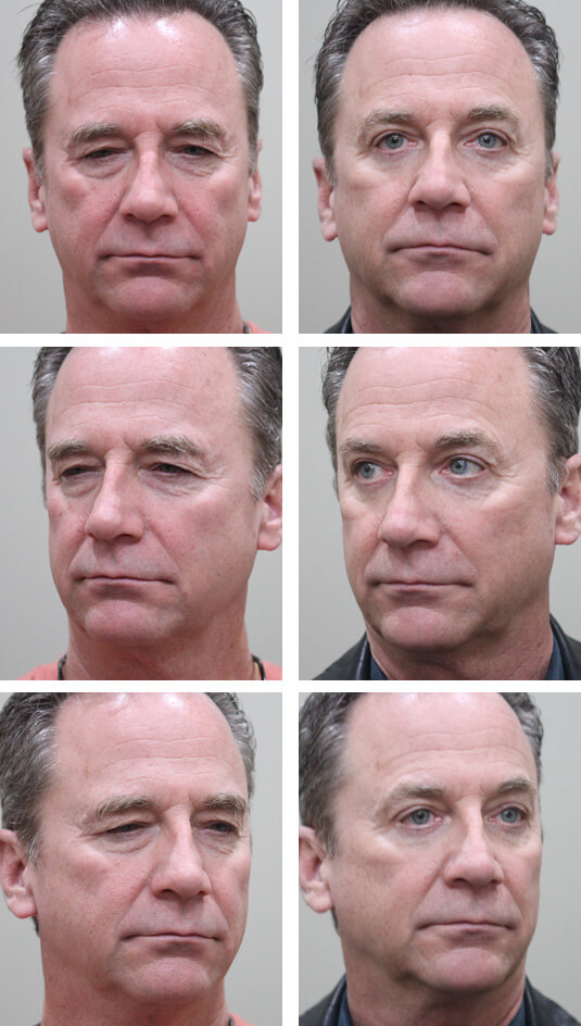 Before and After Picture   59 Year Old Male - Upper and Lower Blepharoplasty