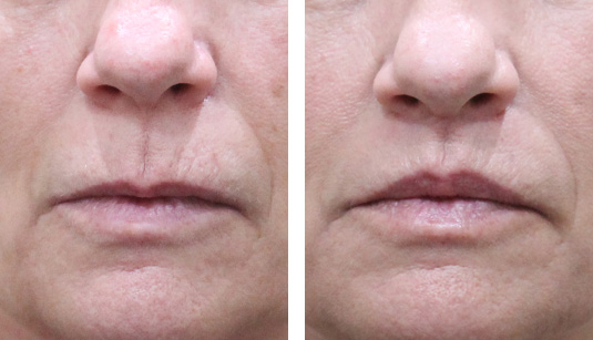 Before and After Picture  61 Year Old Female - Lip Lift to Enhance the Upper Lip. No Filler Added.