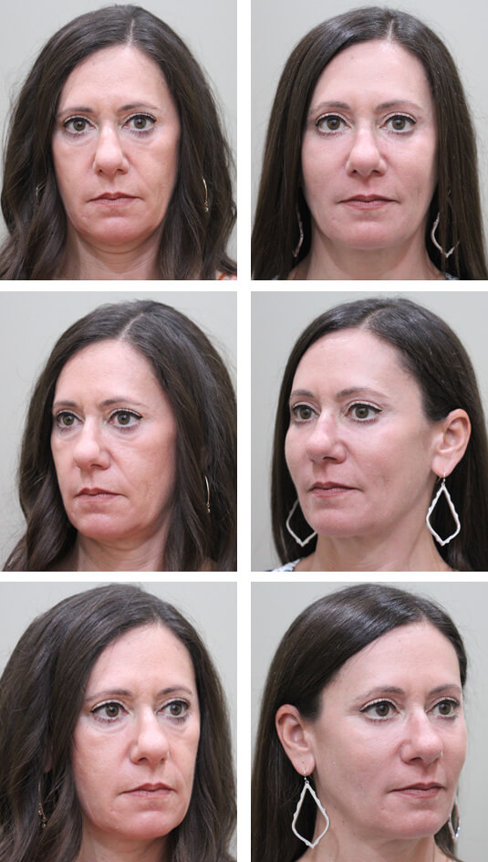 Before and After Picture  51 Year Old Female - Mid-Facelift with lower blepharoplasty, Periocular Laser Skin Resufacing, and Temporal Brow Lift.  The Mid-Facelift was performed through incisions in the mouth and temples, without any skin incisions.