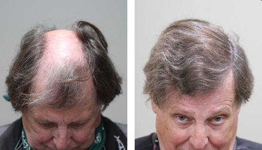 Before and After Picture  70 year old male, 1 year after 2895 grafts.